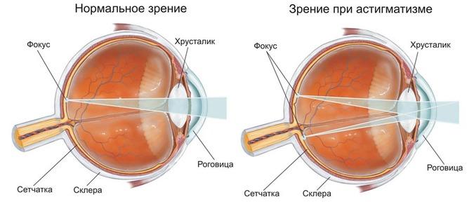 Восстановить зрение невозможно